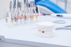 Zahnmedizinisches Gipskiefermodell auf dem Hintergrund des Orthodontistsatzes Klammern und Zangen Selektiver Fokus Stockbild