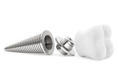 Zahnmedizinisches Konzept. Zahn-Implantat Stockfoto