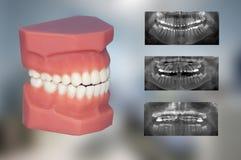 Zahnmedizinisches Modell und Röntgenstrahl von drei reparierten die Geräte, die für Orthodontiebehandlung benutzt wurden lizenzfreie stockfotos