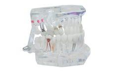 Zahnmedizinisches Modell von Zähnen, lokalisiert auf weißem Hintergrundbeschneidungspfad Lizenzfreie Stockfotografie