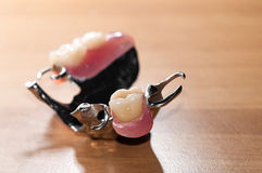 Zahnmedizinisches prothesis Lizenzfreie Stockbilder