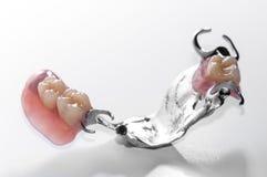 Zahnmedizinisches prothesis stockfoto