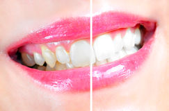 Zahnmedizinisches Weiß werden Stockfoto