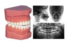 Zahnmodell und cephalometric Röntgenstrahl an lokalisiert mit lizenzfreie stockbilder