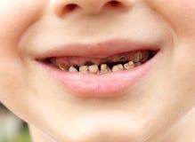 Zahnschmerzen Zahnverfall des Kalbs Stockfoto