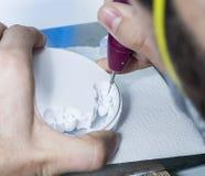 Zahntechniker, der zahnmedizinische burs mit den Zirkoniumzähnen verwendet stockbild