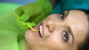 Zahnvorbereitung zur Dichtungsmittelplatzierung, Zahnarzt arbeitet Berufs-, Nahaufnahme stock footage