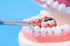 Zahnzahnkaries auf Gebiss mit Ausrüstung stockbilder