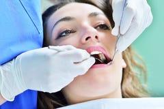 Zakończenie kobieta z otwartym usta podczas oralnego checkup przy dentystą obrazy stock