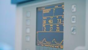 Zakończenie medyczny monitor pokazuje oddychanie up podpisuje zdjęcie wideo