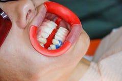 Zakończenie portret żeński cierpliwy odwiedza dentysta bieleje w klinice dla zębów, zęby bieleje procedurę Sprawdza i fotografia stock
