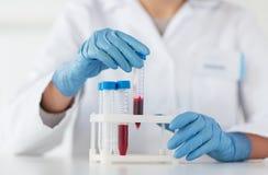 Zakończenie up naukowiec z tubką robi testowi w lab Zdjęcia Stock