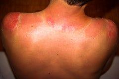 Zakończenie up szczegół bardzo zły sunburn z powrotem obsługuje Zdjęcia Stock