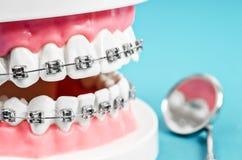 Zakończenie w górę zębu modela z metalu drutu stomatologicznymi brasami zdjęcia royalty free