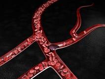 Zakrzepu zakrzepicy i ryzyka medyczna 3d ilustracja Obrazy Royalty Free