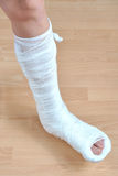 złamana noga Zdjęcie Stock
