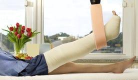 złamana noga Obrazy Royalty Free