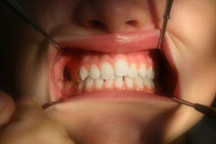 zamknięty dentysta zamknięta inspekcja zdjęcia stock