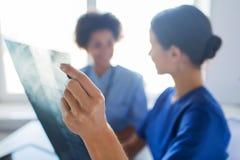 Zamyka up lekarki z promieniowanie rentgenowskie wizerunkiem przy szpitalem Zdjęcie Stock