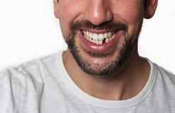 Mężczyzna Brakujący ząb Zdjęcie Royalty Free