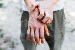 Zamyka w górę dermatitis na skórze, chora alergiczna nierozważna egzemy skóra pacjent, atopic dermatitis objawu skóry szczegółu t zdjęcia royalty free