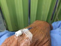 Zamyka w górę igieł dla zastrzyka w ręce cierpliwy lying on the beach Obrazy Royalty Free
