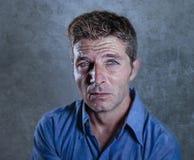 Zamyka w górę portreta młody atrakcyjny mężczyzna cierpienie stres i depresji uczucie smutny i przygnębiony gubjący i desperacki  zdjęcie stock