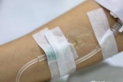 Zamyka w górę ręki kobiety pacjenta z wtryskowy Zasolonym w ręce i podczas łgarskich rehabilitacj łóżek szpital zdjęcia stock