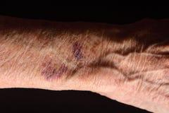 Zamyka w górę stłuczenia w ręce starsza kobieta zdjęcie stock