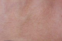 Zamyka W górę wierzchołka ręki skóry tekstura Fotografia Stock