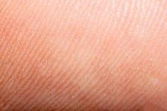 Zamyka w górę ludzkiej skóry. Makro- epiderma Obraz Stock