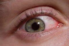 Zaogniony chory ludzki oko makro- obrazy royalty free