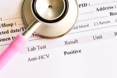 Zapalenia wątroby C wirusowy pozytywny wynik testu zdjęcia stock