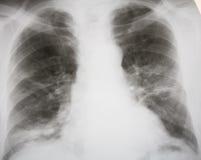 zapalenie płuc septyczny Zdjęcia Royalty Free
