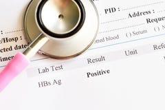 Zapalenie Wątroby B wirusa pozytyw fotografia stock