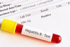 Zapalenie Wątroby B wirusowy pozytywny wynik testu Zdjęcie Stock