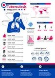 Zaraźliwa Choroba Infographics - gruźlica Zdjęcie Royalty Free