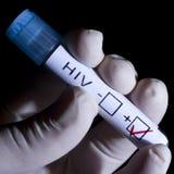 zarażony wirusem hiv Zdjęcia Stock