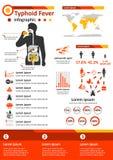 Zaraźliwa Choroba Infographics - Tyfusowa febra Obrazy Royalty Free
