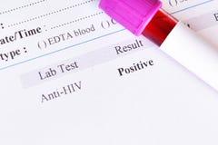 zarażony wirusem HIV wynik testu Zdjęcie Royalty Free