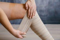 Zastosowanie elastyczny uciskowy bandaż zdjęcia stock