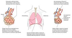 Zawalony płuco Zdjęcia Stock