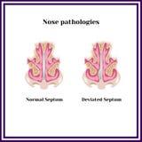Zbaczający septum Nosowa patologia Zdjęcia Stock