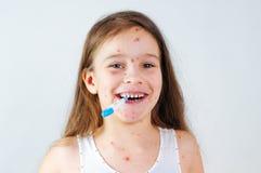 Zbliżenie śliczna śmieszna mała dziewczynka Varicella wirus lub Chickenpox bąbel wysypka na dziecku fotografia royalty free