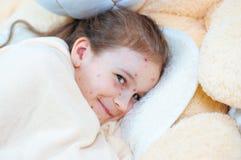 Zbliżenie śliczna śmieszna mała dziewczynka w łóżku Varicella wirus lub Chickenpox bąbel wysypka na dziecku zdjęcie stock