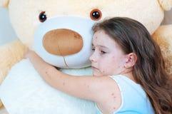 Zbliżenie śliczna smutna mała dziewczynka blisko misia Varicella wirus lub Chickenpox bąbel wysypka na dziecku zdjęcia royalty free