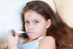 Zbliżenie śliczna smutna mała dziewczynka Varicella wirus lub Chickenpox bąbel wysypka na dziecku zdjęcia royalty free