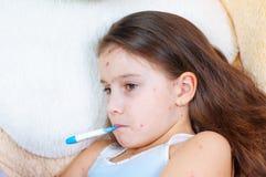 Zbliżenie śliczna smutna mała dziewczynka Varicella wirus lub Chickenpox bąbel wysypka na dziecku zdjęcia stock
