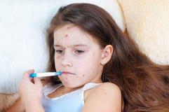 Zbliżenie śliczna smutna mała dziewczynka Varicella wirus lub Chickenpox bąbel wysypka na dziecku fotografia royalty free