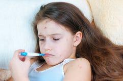 Zbliżenie śliczna smutna mała dziewczynka Varicella wirus lub Chickenpox bąbel wysypka na dziecku obrazy royalty free